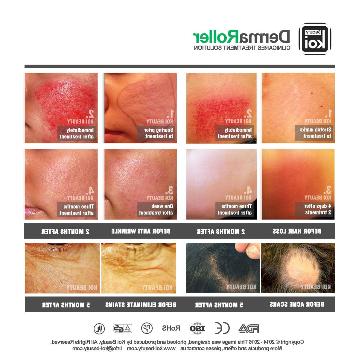 192 Derma All Type Face loss