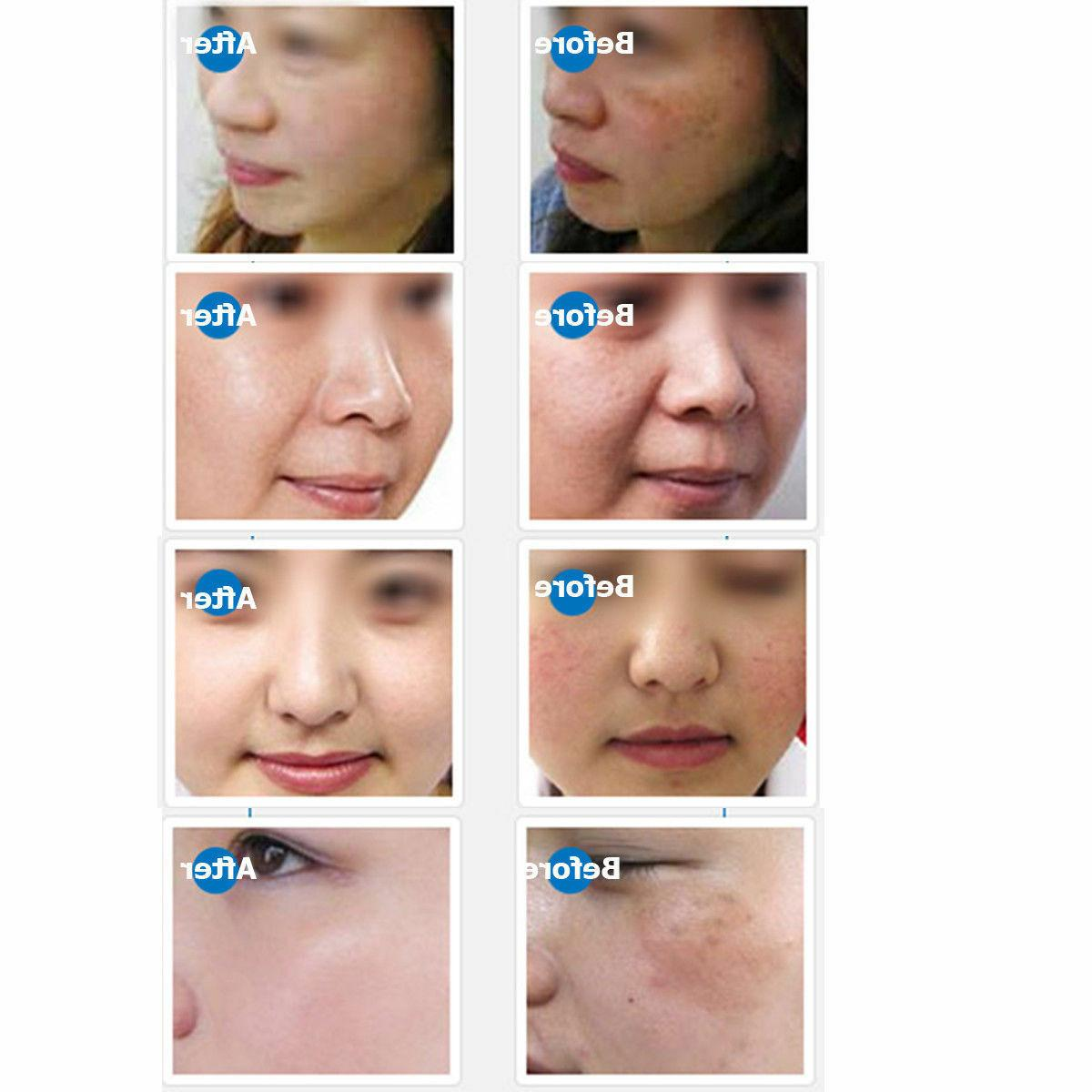 DRS Microneedle Derma Therapy