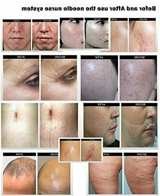 Microneedle for Wrinkle