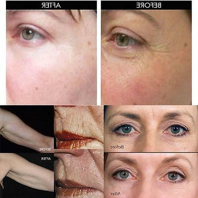 ZGTS Needle Anti Aging Scars PL